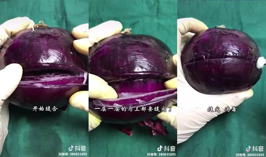 拍攝者用洋蔥取代血腥的真實剖腹產面,網友直呼「好感人的洋蔥」。(圖片翻攝自臉書《爆廢公社二館》)