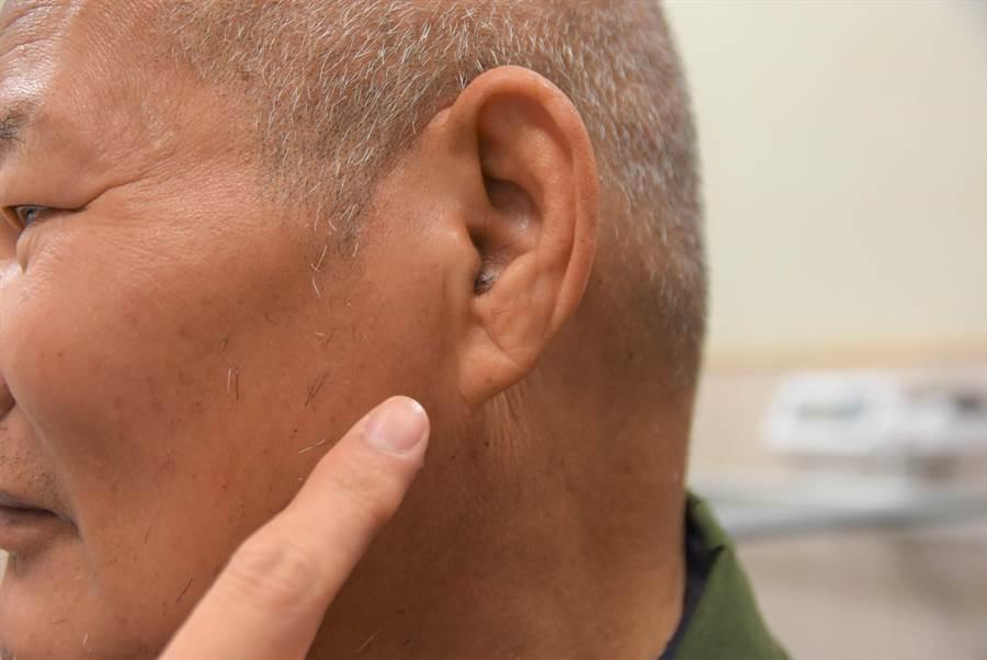 葉姓老翁的耳垂出現對角耳垂皺紋,也稱為冠心溝,醫師提醒,若出現這條皺紋,代表患有心血管疾病風險較高。(莊旻靜攝)