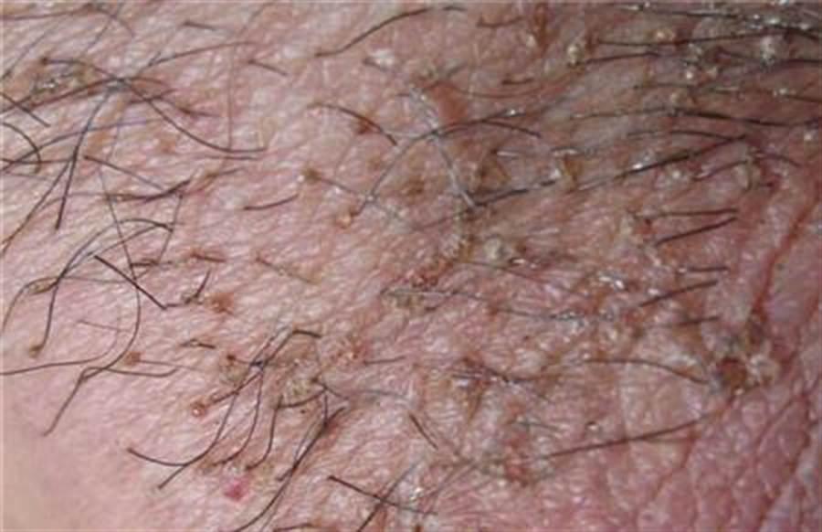 高雄70歲翁四處尋芳激戰,未料自己的下體成為上千隻陰蝨的巢穴 (陰蝨示意圖/翻攝自網路)