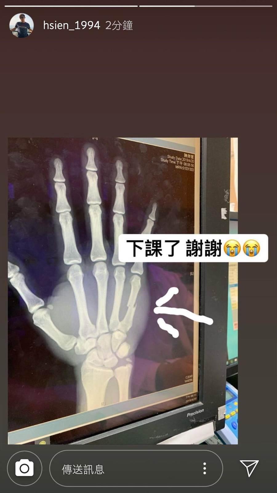 陳傑憲在社群平台貼出X光照片。(翻攝陳傑憲IG)