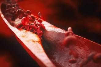 血管老化有多可怕?醫揭恐怖真相