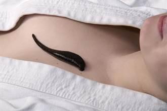 咳血一個月…氣管竟藏15公分水蛭
