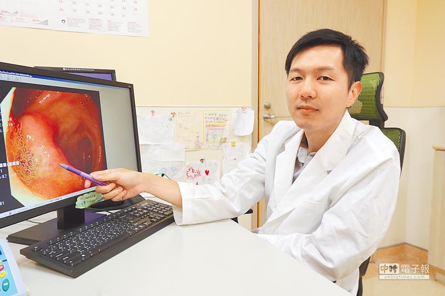 亞大醫院小兒腸胃科主治醫師陳德慶透過胃鏡檢查,幫助「小陽」排除腹痛病因。(林欣儀攝)