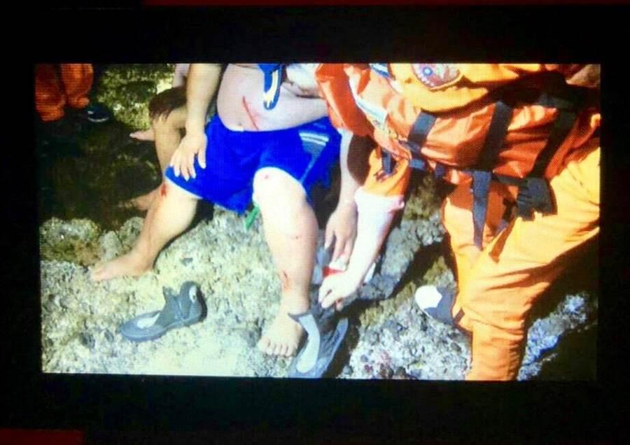 落海渔民获救后,腿部有擦伤送医治疗。