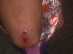 一句「小屁孩」小學生遭5國中生打到渾身傷