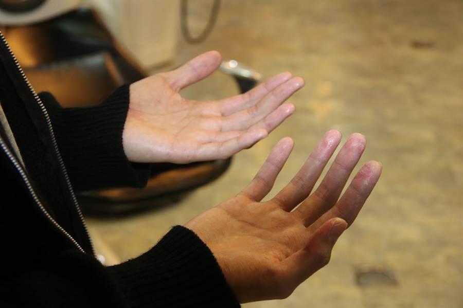 莊昀錩在速食店打工,長期碰水致手破皮,無法跟同學一起練習。(陳淑娥攝)