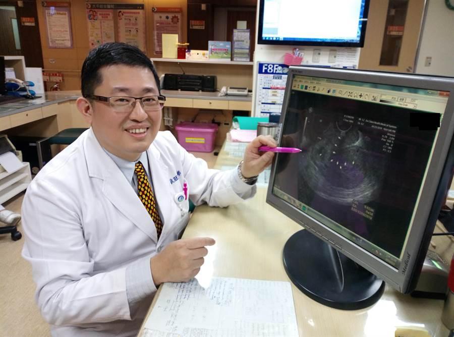大千綜合醫院醫療副院長林敬旺表示,黃姓女子胚胎著床於剖腹產疤痕,恐有隨時破裂危險。(何冠嫻翻攝)