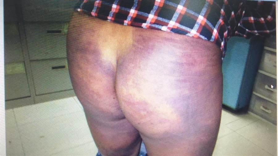 有被害人被打到全身都是瘀青。(警方提供)