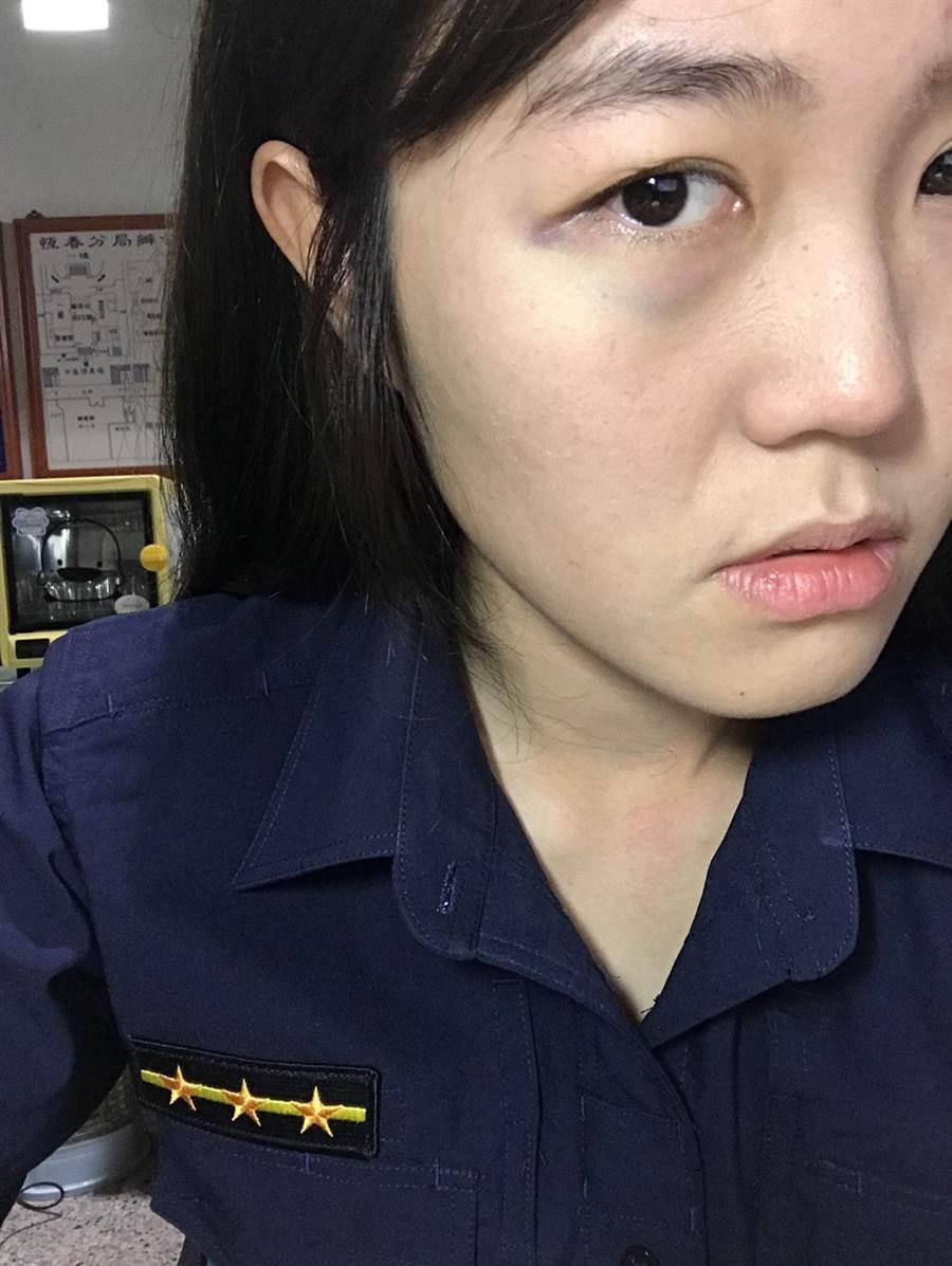恆春正妹女警李怡茹遭毆傷。(潘建志翻攝)