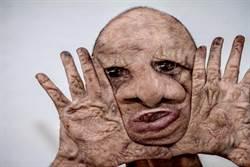 婦患怪病臉變形被笑像「喪屍」 只能趴地與狗睡