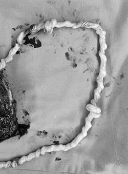胎兒臍帶2死結撐過13周 醫:相信世上有奇蹟