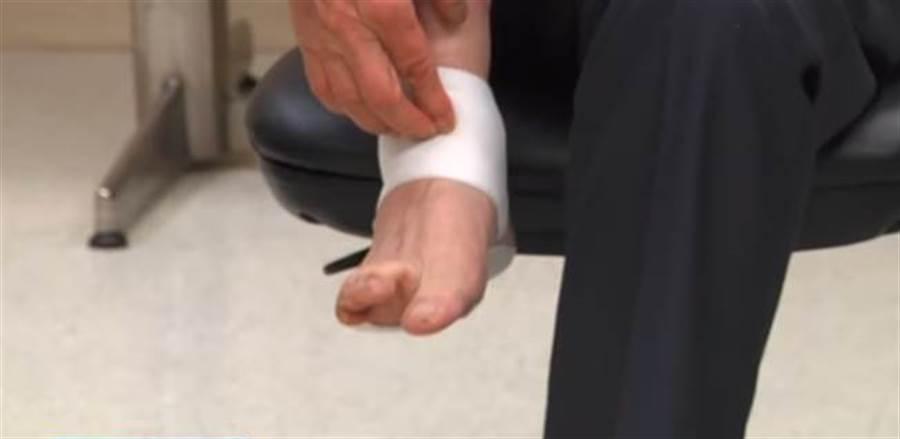 別把痠痛貼布當萬靈丹!老翁腳疼貼5年險截肢。(圖/中天新聞)