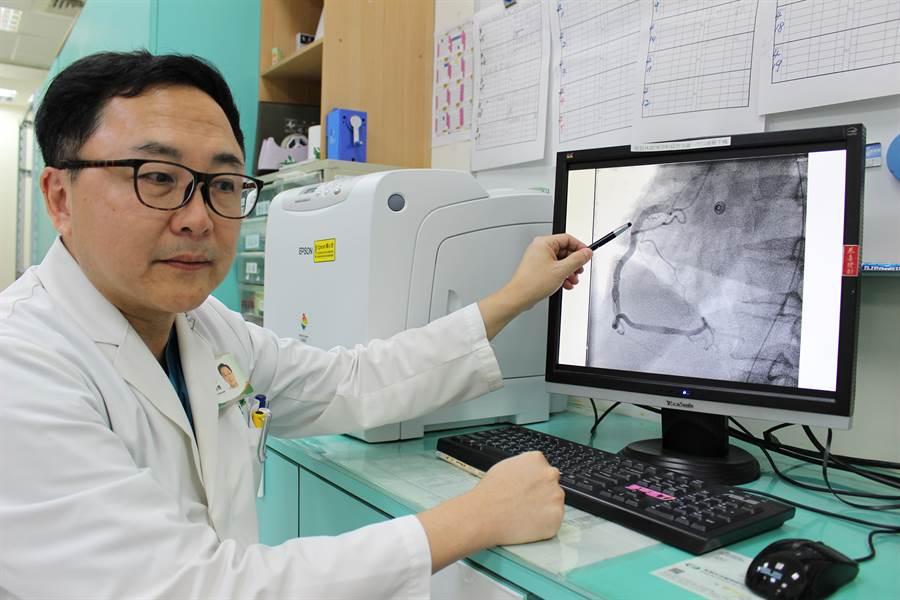 豐原醫院心臟內科主任曹承榮從廖男的冠狀動脈攝影檢查發現,血管並阻塞,懷疑是長期飲用烈酒,引發擴張性心肌病變。(王文吉攝)