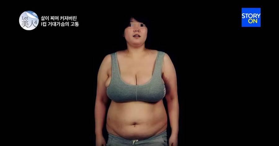 36歲的金姓女子自稱喝水都會胖,婚後體重從65公斤飆到94公斤。(翻攝自YouTube/StoryonTV)