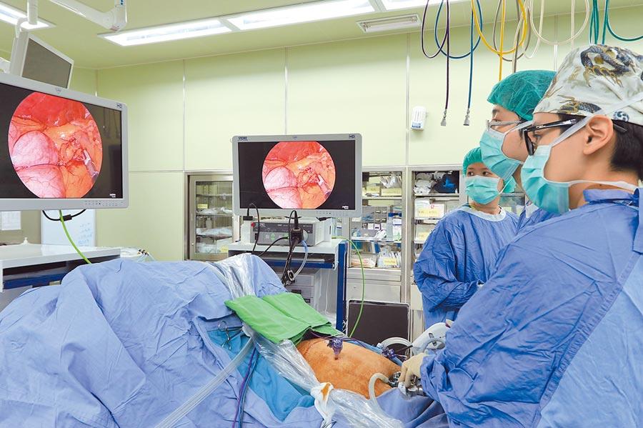 醫界爆一次性「雙擊電外科器械」重複使用,衛福部將研究是否解除一次性限制。圖為醫生進行手術的畫面。(本報資料照片)