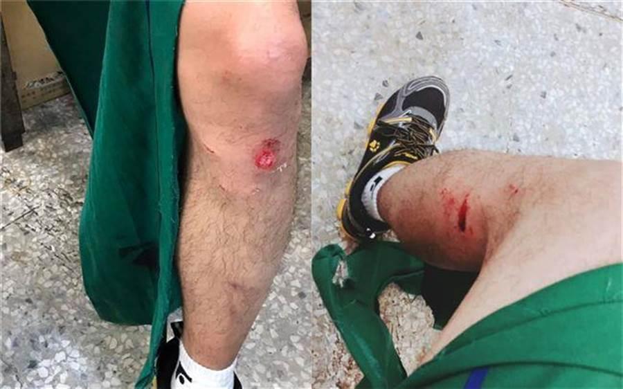 郵務士左小腿多處被兇性大發的比特犬咬傷。(圖/翻攝自當事人臉書)