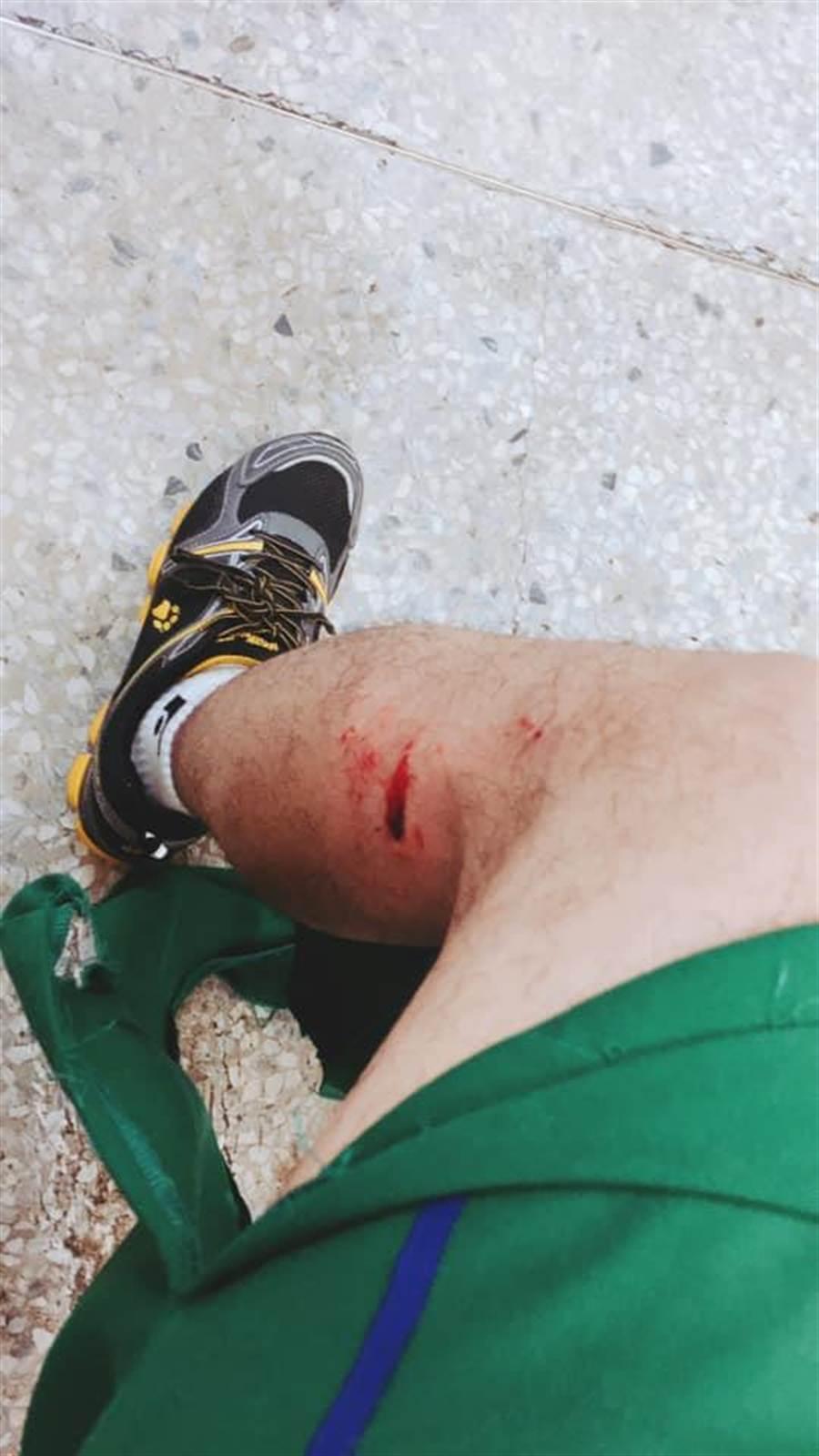 曾姓郵務士不僅半邊褲子全毀,腿部也出現多處傷痕。(莊旻靜翻攝)