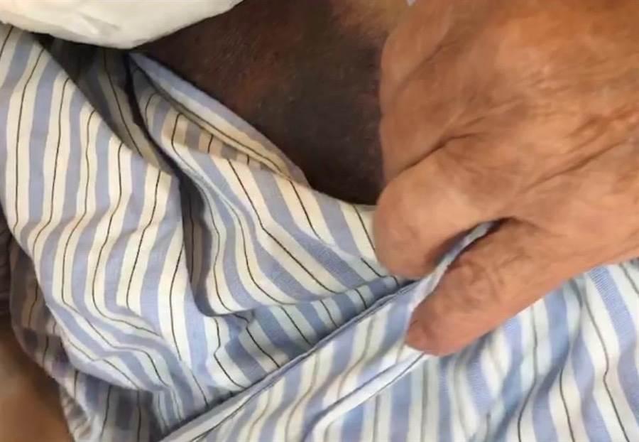 謝男6日將8旬老父毆打到臉、胸充滿瘀青,肋骨甚至斷了2根。(莊旻靜翻攝)