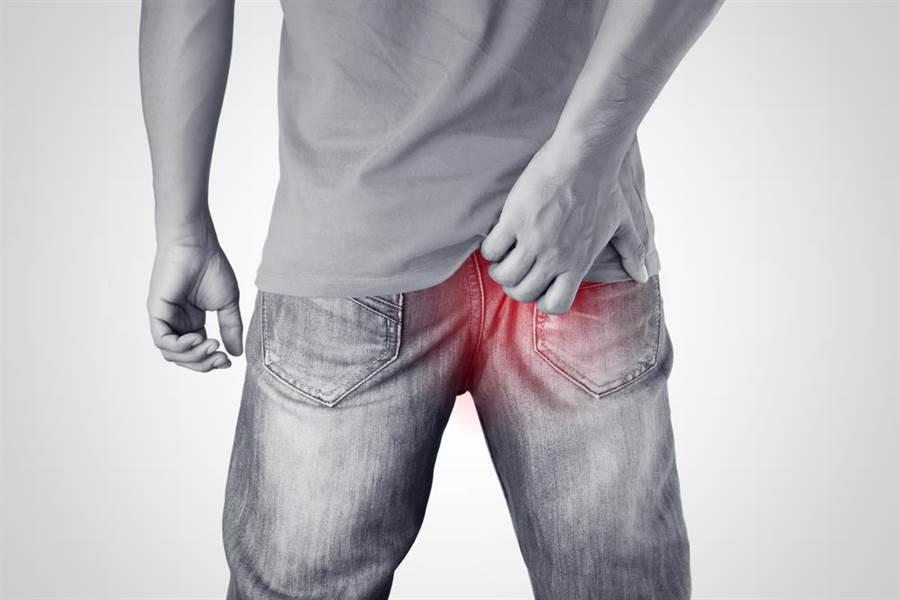 中年男屁股好癢 竟是同時得了皮膚癌、直腸癌。(達志)