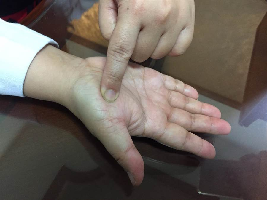 中醫師指失眠會造成婦女經期不順,可以自己按摩雙手大姆指下的肌肉群魚際穴做保養。(馮惠宜攝)