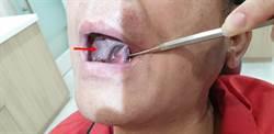 口腔破洞3周未癒合 4處病變確診罹癌