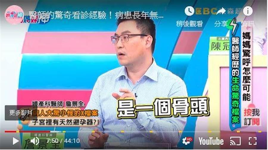 婦產科醫師詹景全最近在節目上分享病例。(翻攝媽媽好神節目)