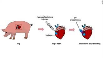 大陸開發生物三秒膠 可迅速封阻心臟動脈大出血