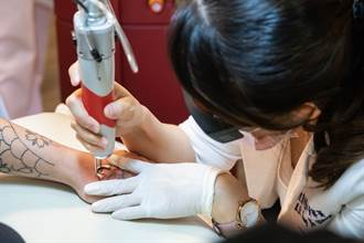 光澤積極發展社會公益 雙機皮秒除刺青