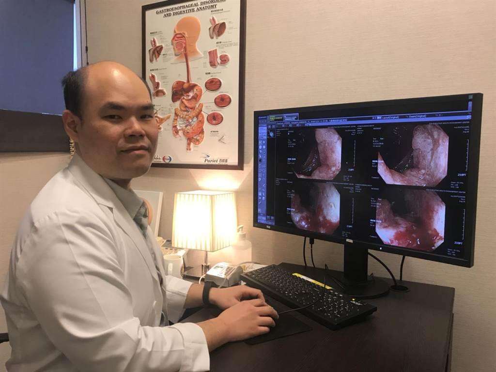 柏忕健康管理中心肝膽腸胃科醫師陳仕豐表示,經一系列的精密健檢,發現該患者已罹患大腸癌及食道癌多時。(馮惠宜翻攝)