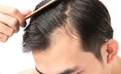 掉髮是癥兆!5大食物吃出恐怖疾病