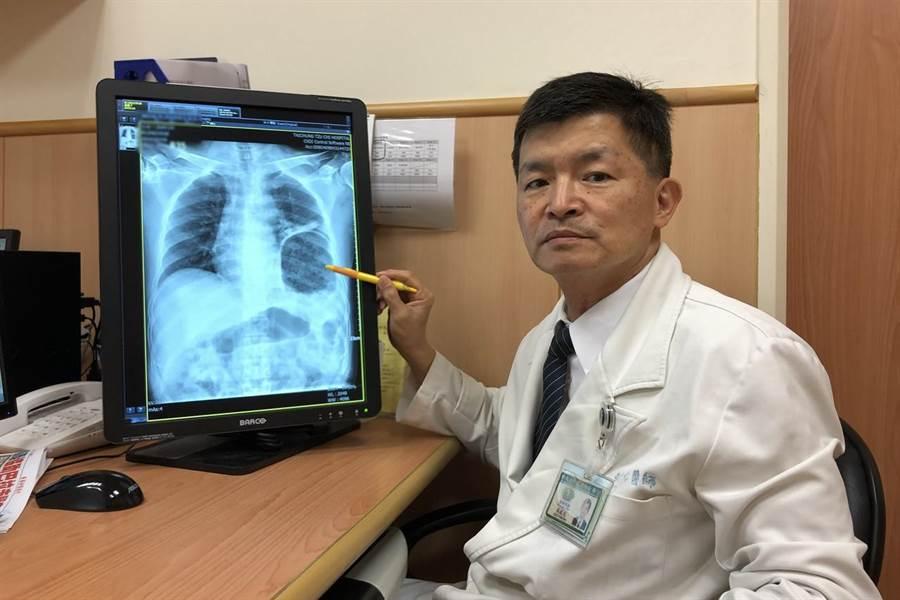 台中慈濟醫院胸腔外科吳政元主任表示,排便用力導致橫膈膜破裂是非常罕見。(王文吉攝)