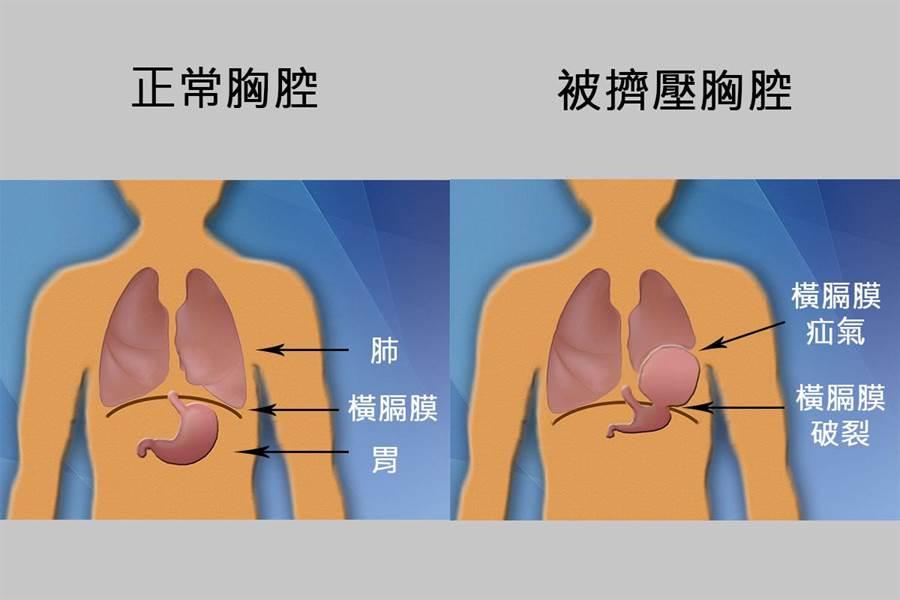 正常的胸腔和被擠壓的胸腔對照示意圖。(院方提供)