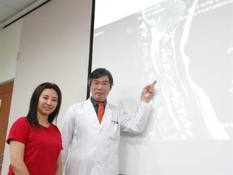 哺乳媽媽不舉的痛 靠頸椎內視鏡微創手術治好