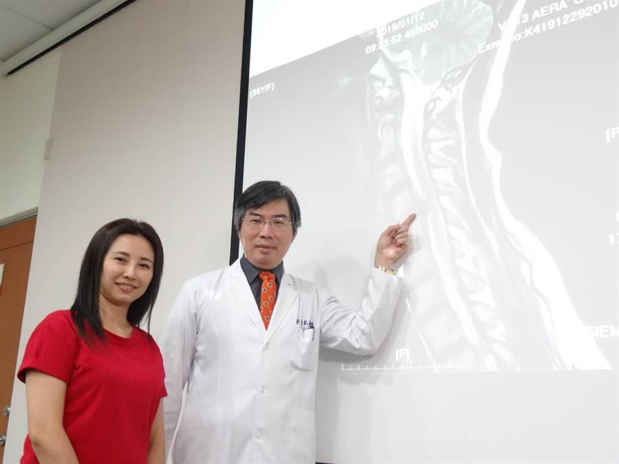 台中榮總功能性神經外科主任鄒錫凱(右)說,吳小姐(左)影像檢查發現頸椎第4、5節椎間盤向後突出,壓迫到神經。(馮惠宜攝)