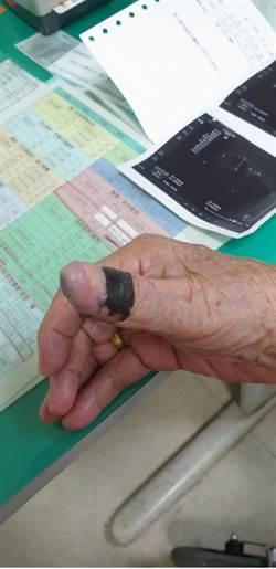 以為貓抓傷感染 老婦竟手指黑痣癌變