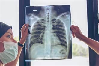 21歲女咳嗽當小感冒 發現肺腺癌5天離世