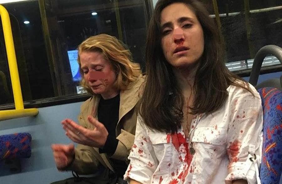 女同志情侶Melania Geymonat(右)和Chris在倫敦公車上遭到騷擾和攻擊。(照片來源:Melania Ps臉書)