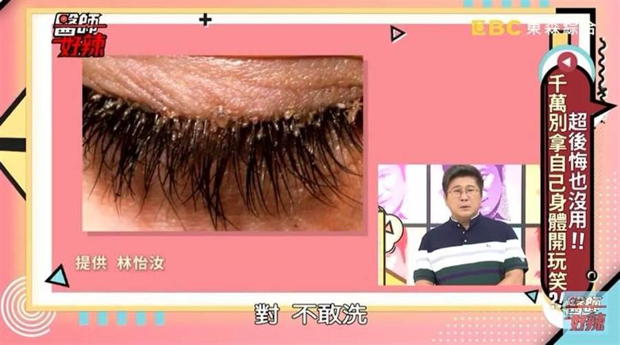 患者不敢清洗眼部,深怕剛接好的睫毛脫落。(圖/截自《醫師好辣》YouTube)