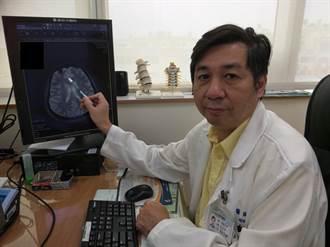 女子罕見顱骨長瘤 成鐘乳石狀生長