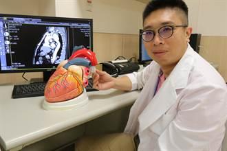 6旬翁喉嚨沙啞逾2周 胸主動脈瘤剝離險喪命