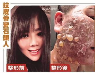 【天后御醫出包5】美魔女變「泡泡人」 剪臉皮痛到想投胎
