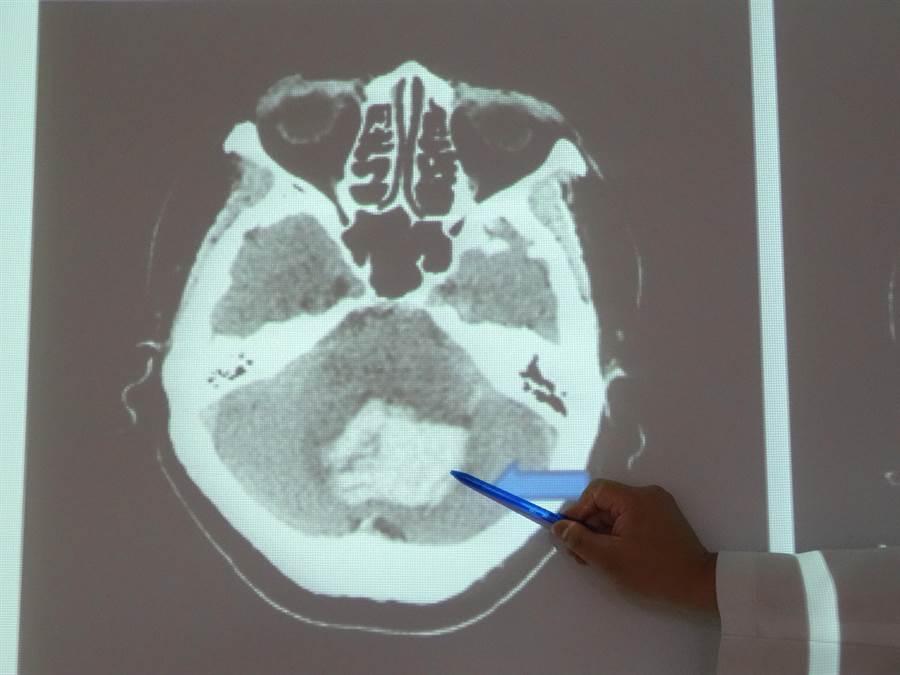 61婦人送醫做電腦斷層發現小腦處有3公分大的血塊。(馮惠宜攝)