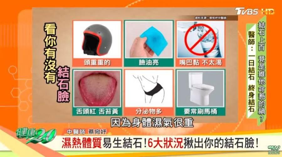 中醫師分享6徵兆,觀察是否有結石體質。(翻攝YOUTUBE)