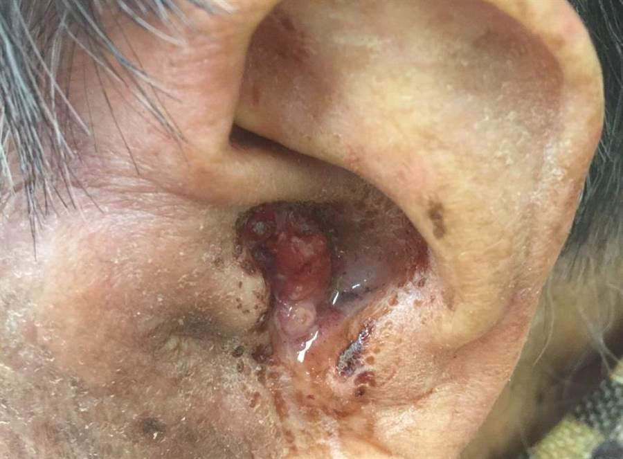 沈女左外耳道出現掏不出的耳屎,切片化驗竟是腫瘤。(安南醫院提供)