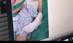 洗手台破裂 10歲童動脈、靜脈、神經遭割斷