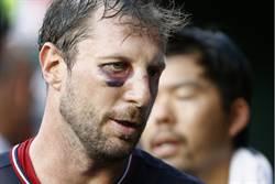 MLB》打斷鼻樑顛倒勇 薛爾瑟頂黑眼圈飆10K