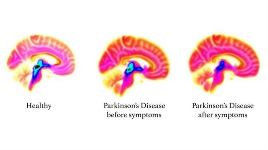 大腦掃描圖像,左側為正常大腦,中間是還未出現症狀的大腦,右側為患病者大腦。從圖中可以看到藍/黑色部分的血清素在患病過程中逐漸減少。(圖擷自倫敦國王學院)