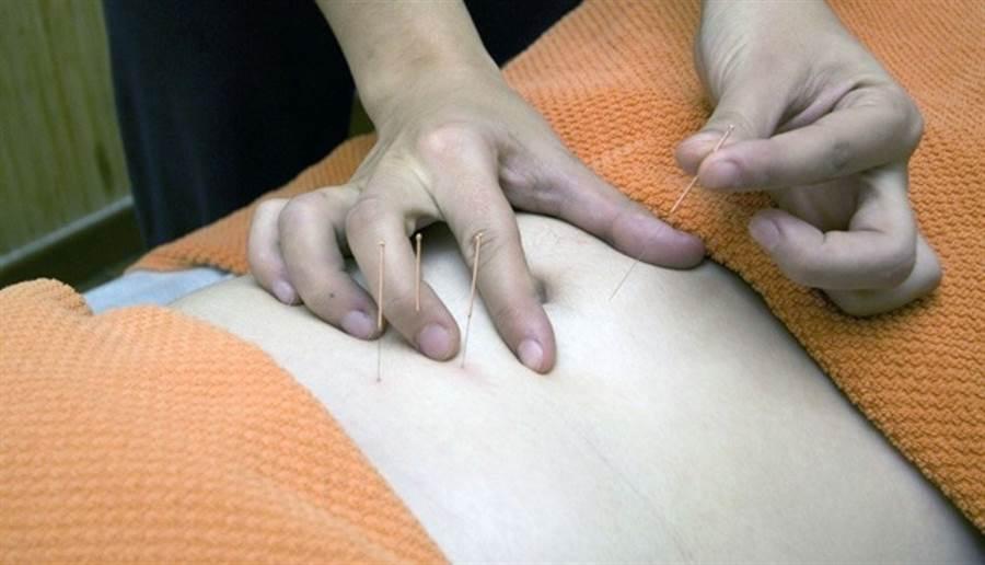 針灸被認為可調整身體氣血循環,達到引產功效。(圖片來源:pixabay)