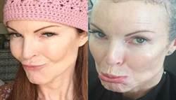 女星罹患肛門癌 4招遠離HPV
