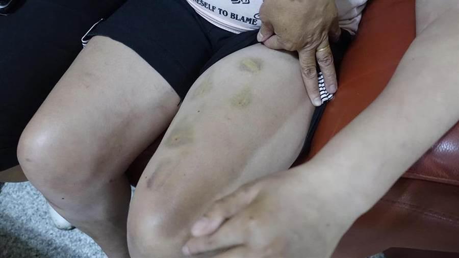 25歲身心障礙女學員大腿上滿是瘀傷。(譚宇哲翻攝)